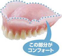 コンフォート(噛みしめても痛くない入れ歯)